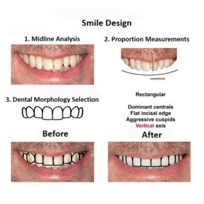 Digital-Smile-Design-Smiles-Peru-2