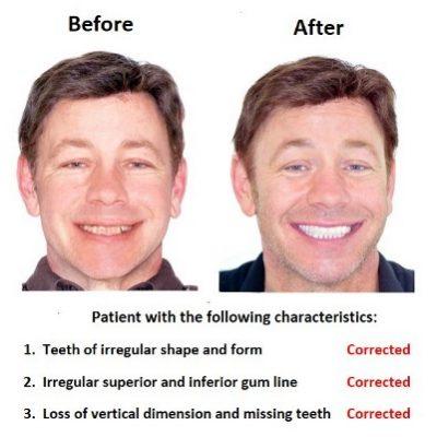 Oral-Rehabilitation-Smiles-Peru-Case-Study-1