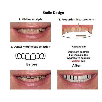 Oral-Rehabilitation-Smiles-Peru-Case-Study-2