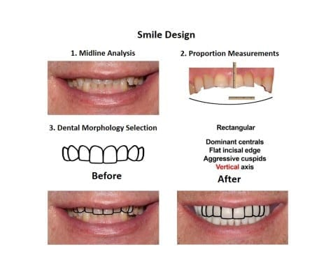 Oral-Rehabilitation-Smiles-Peru-Case-Study
