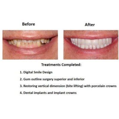 Oral-Rehabilitation-Smiles-Peru-Case-Study-3