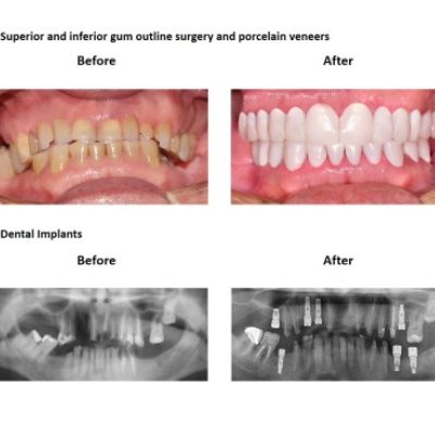 Oral-Rehabilitation-Smiles-Peru-Case-Study-4-1