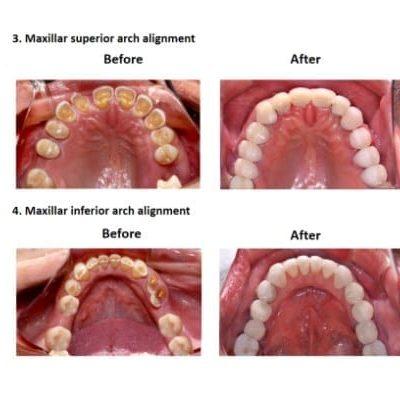 Oral-Rehabilitation-Smiles-Peru-Case-Study-5