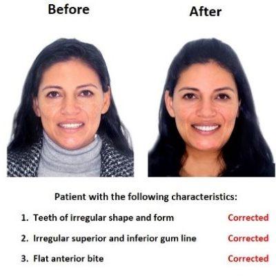 Porcelain-Veneers-Smiles-Peru-Case-Study-1