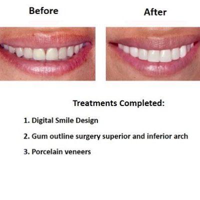 Porcelain-Veneers-Smiles-Peru-Case-Study-2