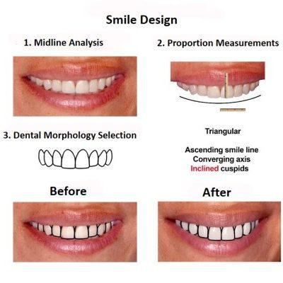 Porcelain-Veneers-Smiles-Peru-Case-Study-3