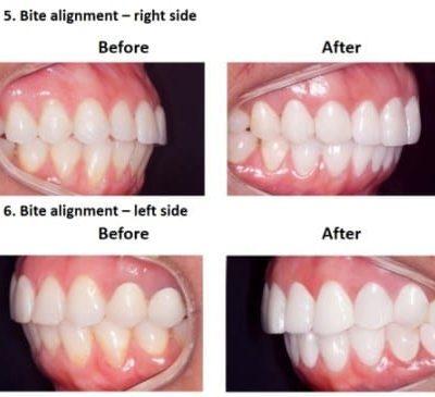 Porcelain-Veneers-Smiles-Peru-Case-Study-6