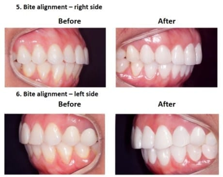 Porcelain-Veneers-Smiles-Peru-Case-Study