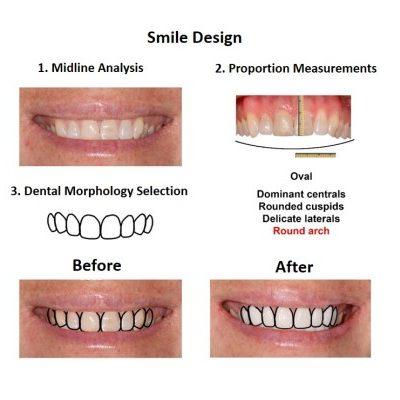 Porcelain-Veneers-case-study-Smiles-Peru-2