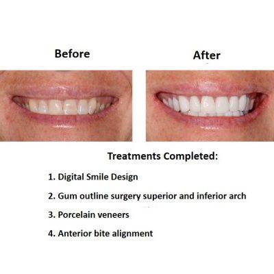 Porcelain-Veneers-case-study-Smiles-Peru-3