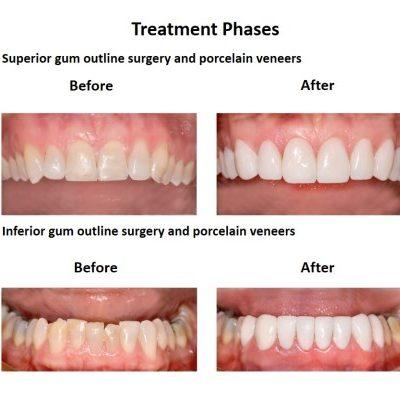Porcelain-Veneers-case-study-Smiles-Peru-4