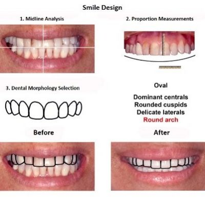 Smile-Design-Lima-Dentist-Smiles-Peru-2