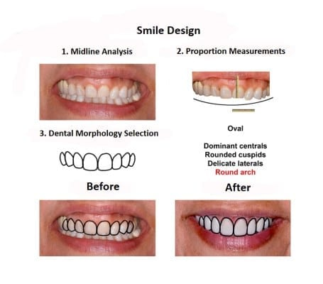 Smile-Design-Smiles-Peru-Case-Study