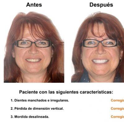 Smiles-Peru-Carillas-de-Porcelana-Estetica-Dental-Caso-Clinico-1