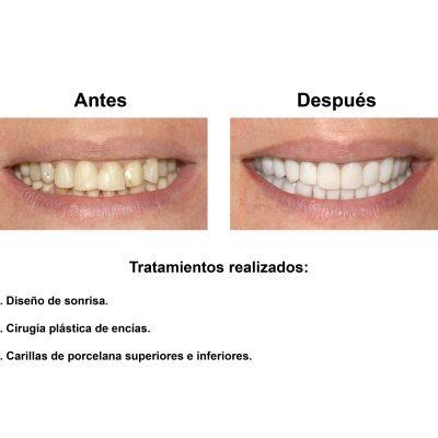 Smiles-Peru-Carillas-de-Porcelana-Estetica-Dental-Caso-Clinico-2