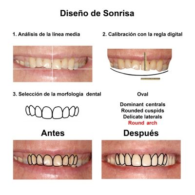 Smiles-Peru-Caso-Clinico-Dentista-3