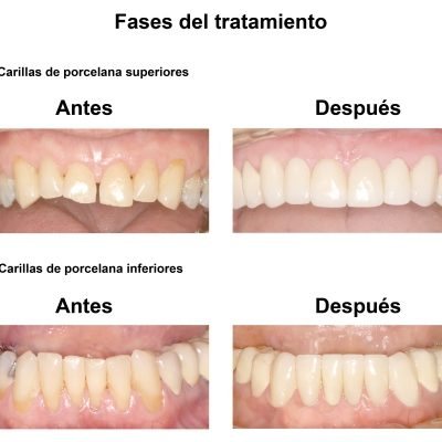 Smiles-Peru-Caso-Clinico-Dentista-4
