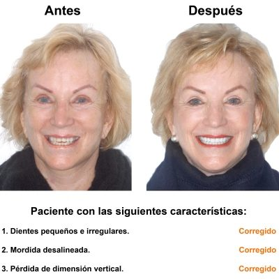 Smiles-Peru-Estetica-Dental-Caso-Clinico-1