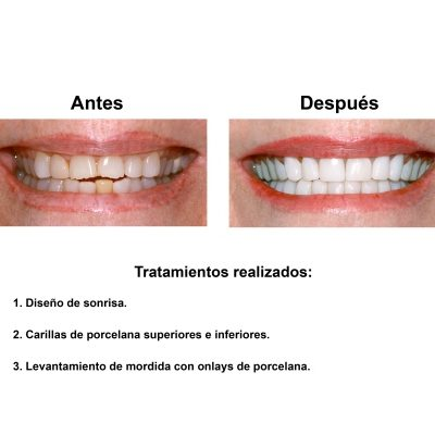 Smiles-Peru-Estetica-Dental-Caso-Clinico-2