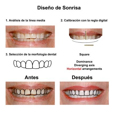 Smiles-Peru-Estetica-Dental-Caso-Clinico-3