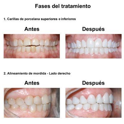 Smiles-Peru-Estetica-Dental-Caso-Clinico-4