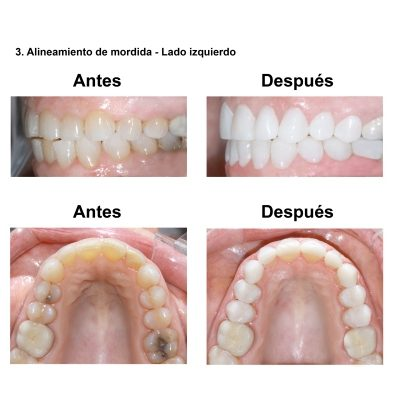 Smiles-Peru-Estetica-Dental-Caso-Clinico-5