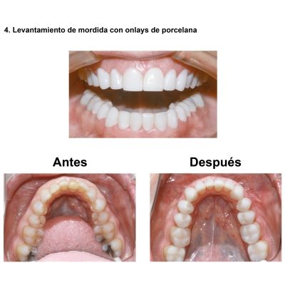Smiles-Peru-Estetica-Dental-Caso-Clinico-6