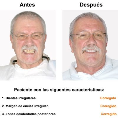 Smiles-Peru-Implantes-Dentales-Caso-Clinico-1