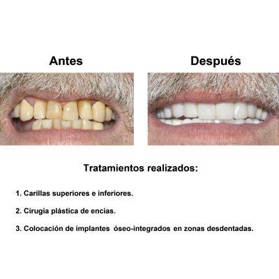Smiles-Peru-Implantes-Dentales-Caso-Clinico-2