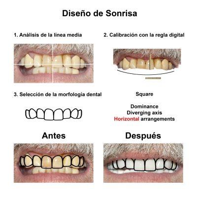 Smiles-Peru-Implantes-Dentales-Caso-Clinico-3