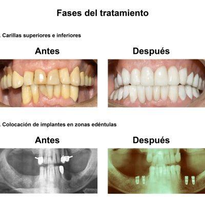 Smiles-Peru-Implantes-Dentales-Caso-Clinico-4