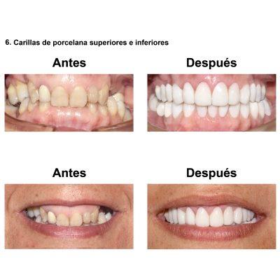 Smiles-Peru-Rehabilitaion-Oral-Caso-Clinico-Lima-7
