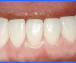cosmetic dentistry smiles peru