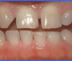 cosmetic dentistry smiles peru lima