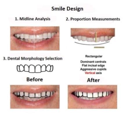 oral-rehabilitation-smiles-peru-case-study-john-2-3
