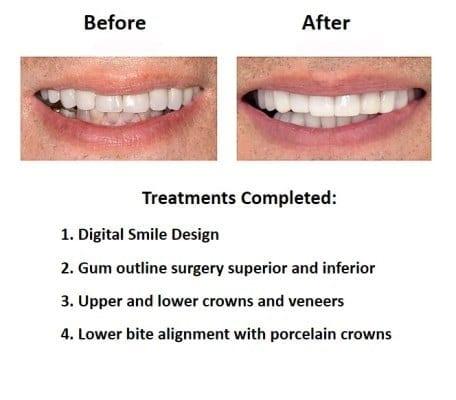 oral-rehabilitation-smiles-peru-case-study-john-3-4