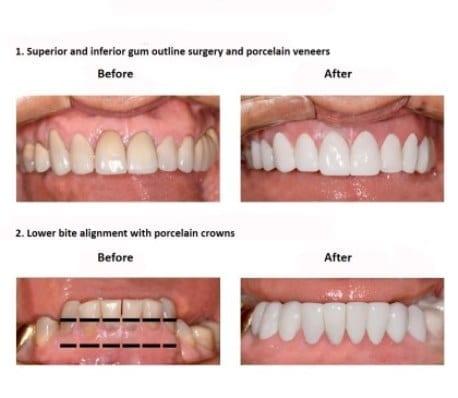 oral-rehabilitation-smiles-peru-case-study-john-4-3