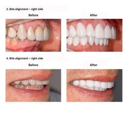 oral-rehabilitation-smiles-peru-case-study-john-5-3