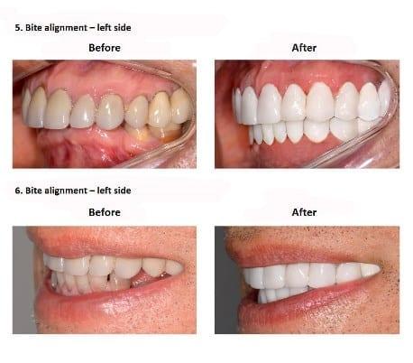 oral-rehabilitation-smiles-peru-case-study-john-6-3