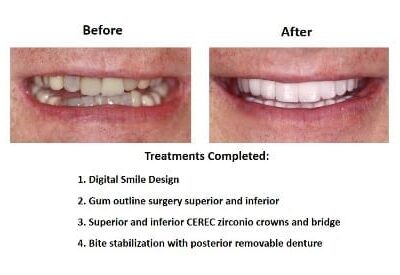 Dental-Implants-Case-Study-Smiles-Peru
