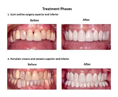 Dental-Implants-Case-Study-Smiles-Peru-1