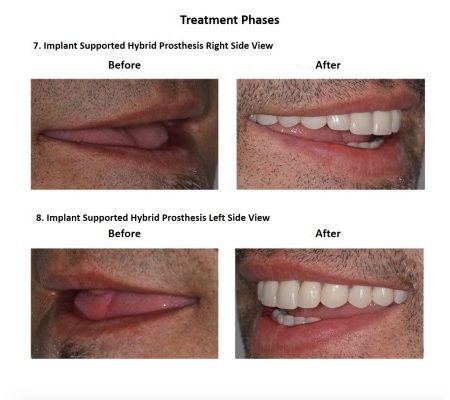 All on Six Dental Implants Smiles Peru Hybrid Proshesis (1)