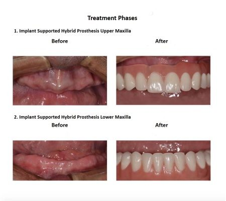 All on Six Dental Implants Smiles Peru Hybrid Proshesis (6)