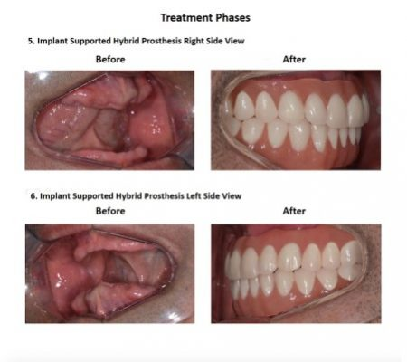All on Six Dental Implants Smiles Peru Hybrid Proshesis (8)