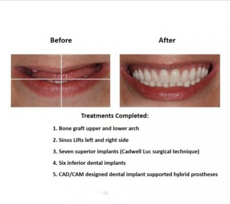 Bone grafting for dental implant prosthesis (2)