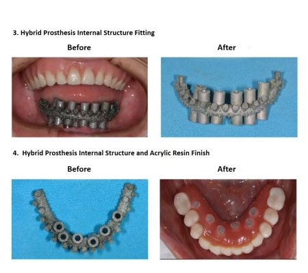 Bone grafting for dental implant prosthesis (5)