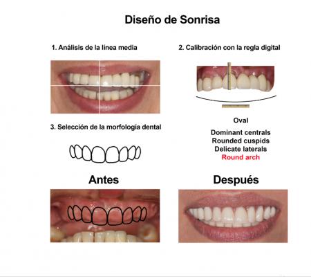 Implantes Dentales con Protesis Hibrida Smiles Peru (1)