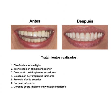 Implantes Dentales con Protesis Hibrida Smiles Peru (2)
