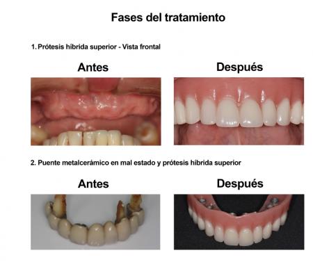 Implantes Dentales con Protesis Hibrida Smiles Peru (3)