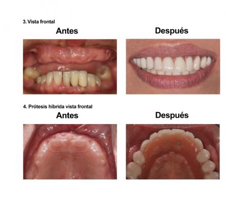 Implantes Dentales con Protesis Hibrida Smiles Peru (4)